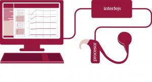 Za pomocą komputera połączonego przez interfejs z procesorem inżynier kliniczny programuje pamięć procesora w taki sposób, aby przetwarzał on dźwięki ze świata zewnętrznego na impulsy elektryczne w sposób optymalny dla pacjenta.
